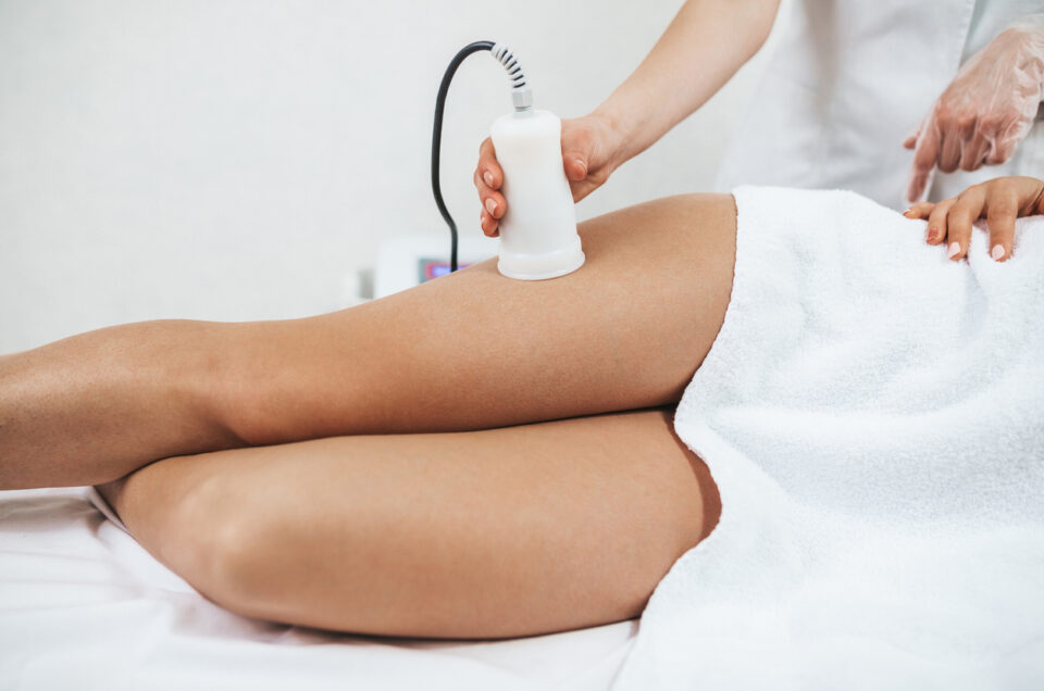 The Nonsurgical Fat Slimming Secret: Ultrasonic Body Cavitation and Radio Frequency